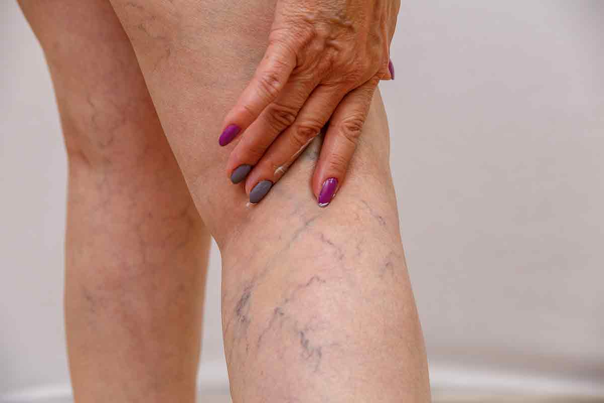 5Spider Vein Treament in Cedar ParkSpider Vein Treament in Cedar ParkSpider Vein Treament in Cedar ParkSpider Vein Treatment in Cedar Park0